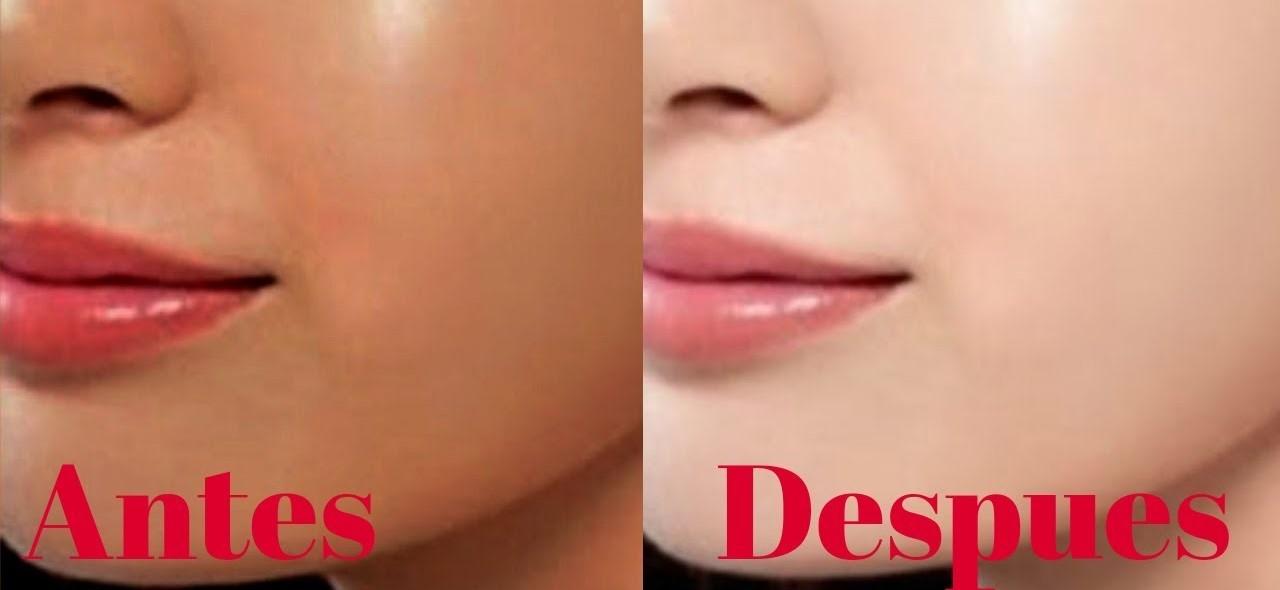 aclarar la piel